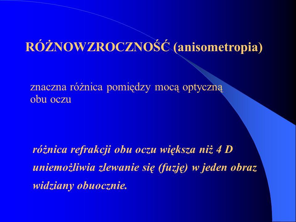 RÓŻNOWZROCZNOŚĆ (anisometropia)