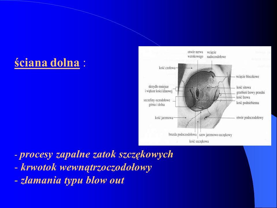 ściana dolna : krwotok wewnątrzoczodołowy złamania typu blow out
