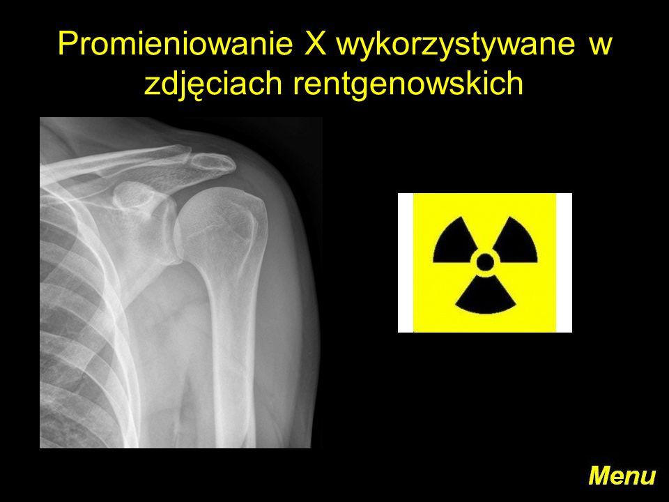 Promieniowanie X wykorzystywane w zdjęciach rentgenowskich