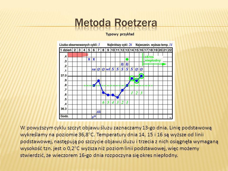 Metoda Roetzera Typowy przykład.