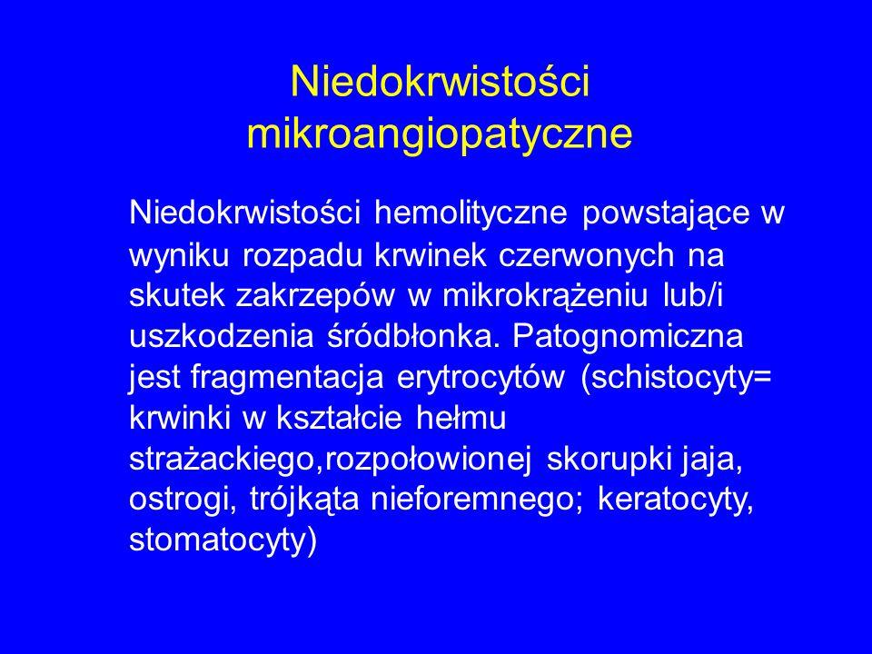 Niedokrwistości mikroangiopatyczne