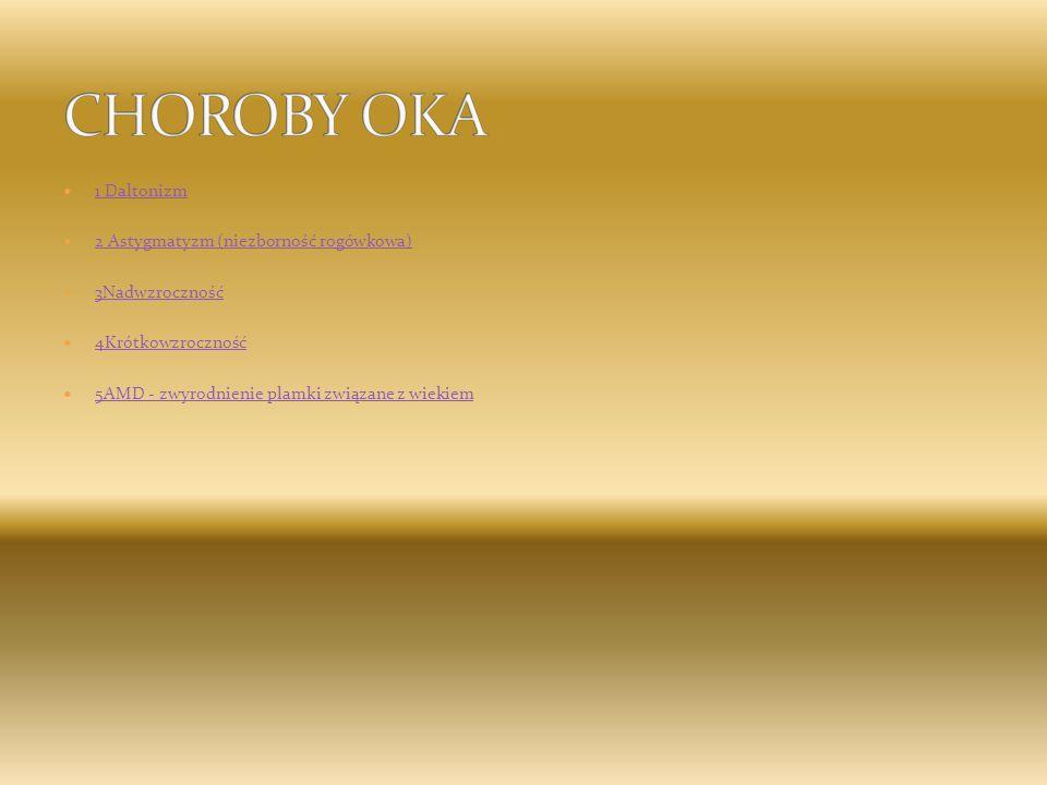 CHOROBY OKA 1 Daltonizm 2 Astygmatyzm (niezborność rogówkowa)