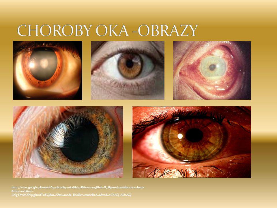 CHOROBY OKA -OBRAZY