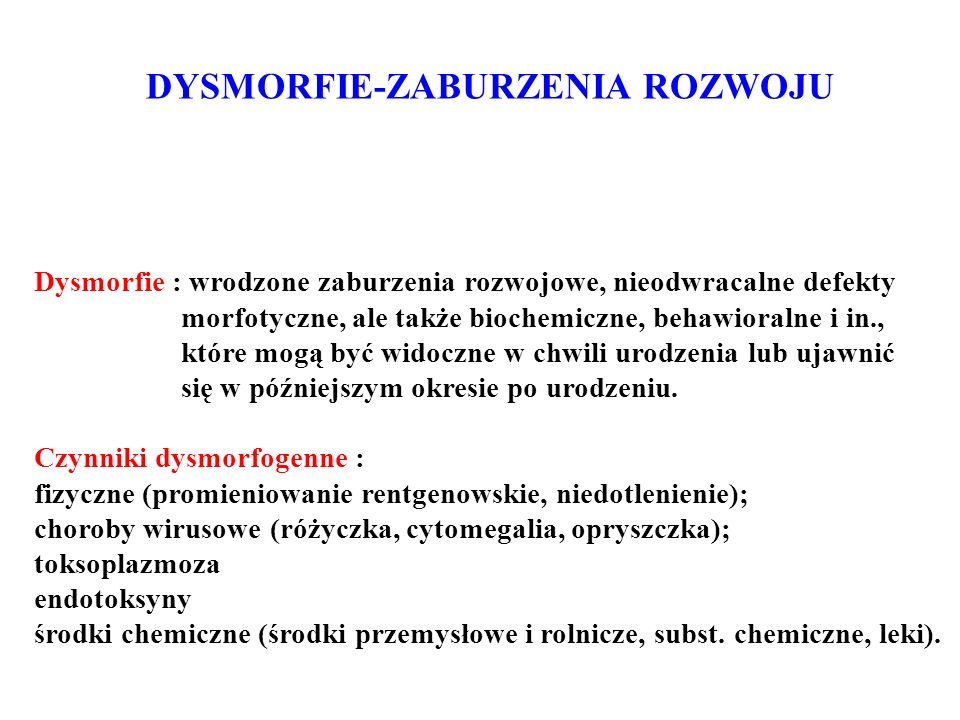DYSMORFIE-ZABURZENIA ROZWOJU