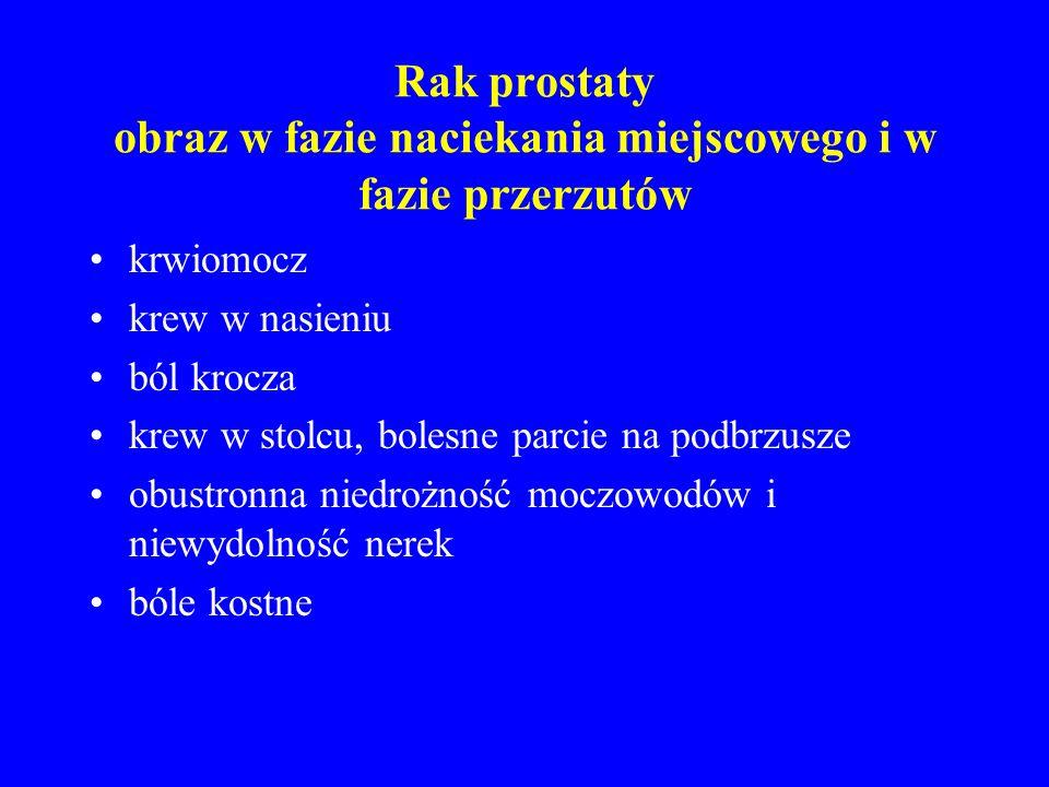 Rak prostaty obraz w fazie naciekania miejscowego i w fazie przerzutów