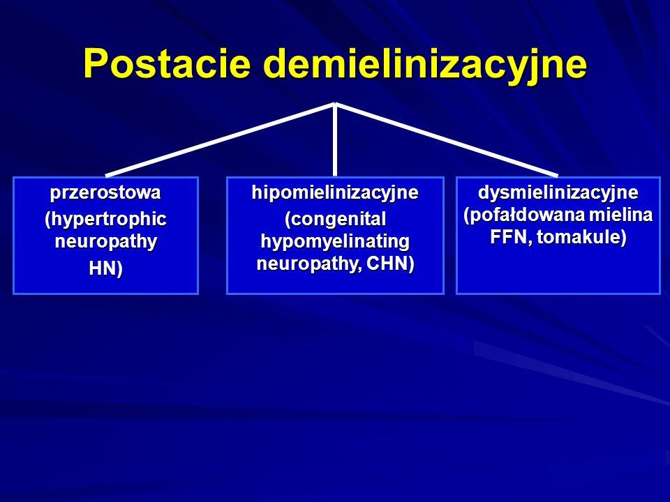 Postacie demielinizacyjne