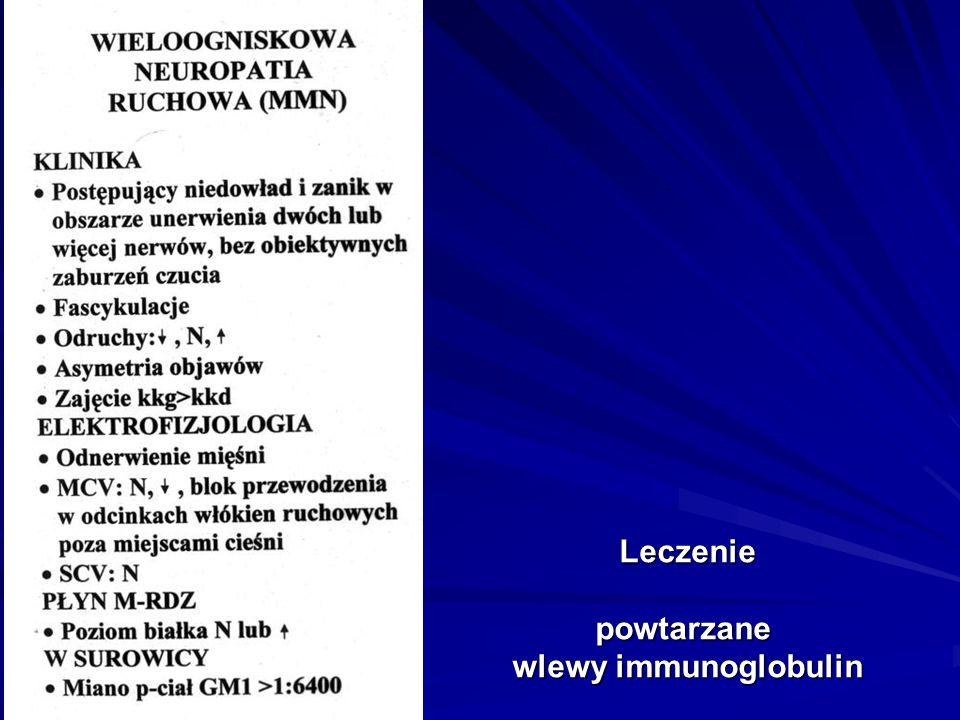 Leczenie powtarzane wlewy immunoglobulin
