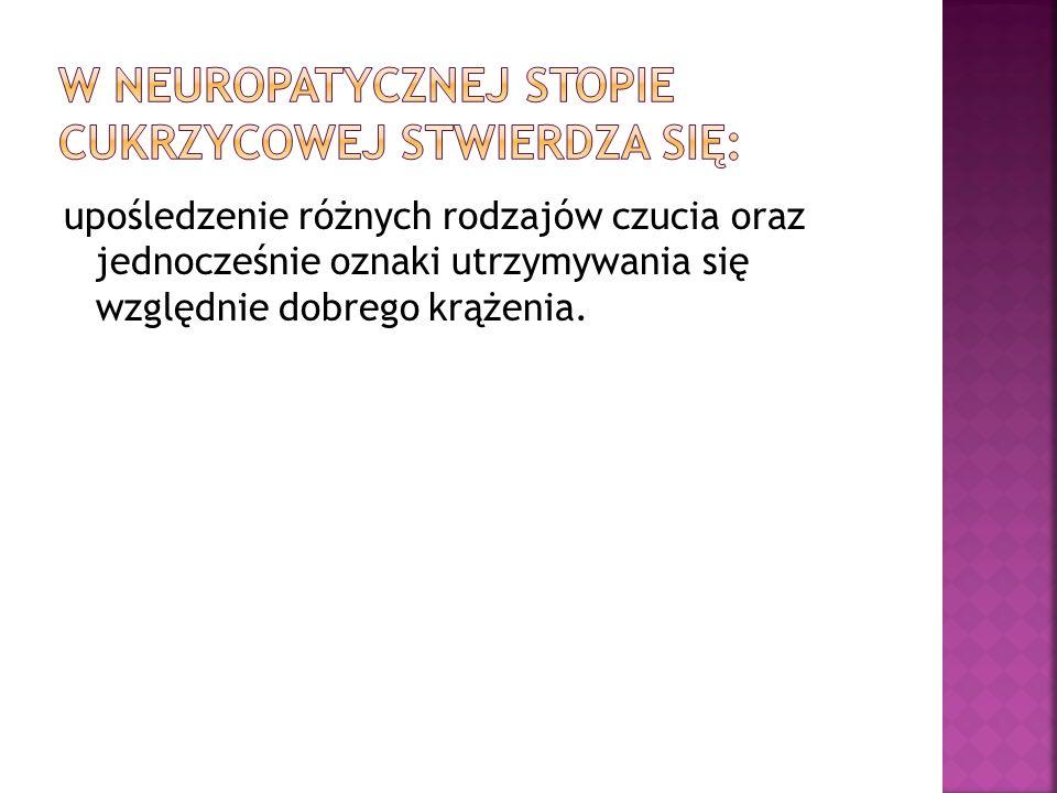 W neuropatycznej stopie cukrzycowej stwierdza się: