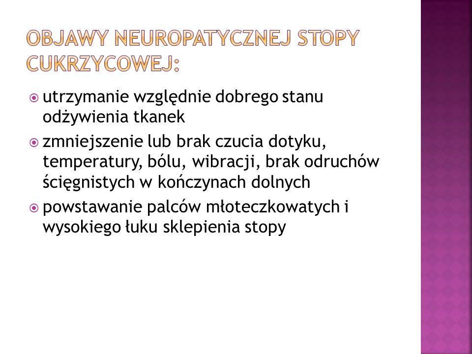 Objawy neuropatycznej stopy cukrzycowej: