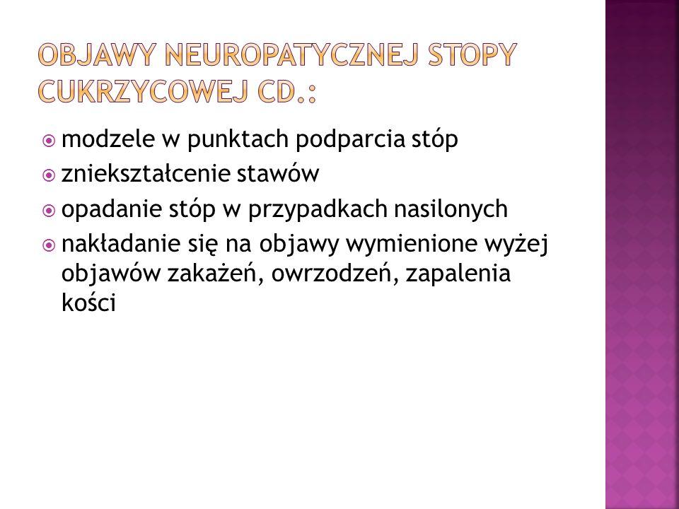 Objawy neuropatycznej stopy cukrzycowej cd.: