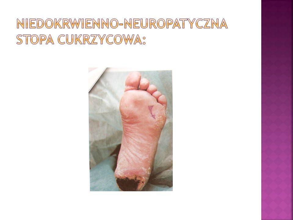 Niedokrwienno-neuropatyczna stopa cukrzycowa:
