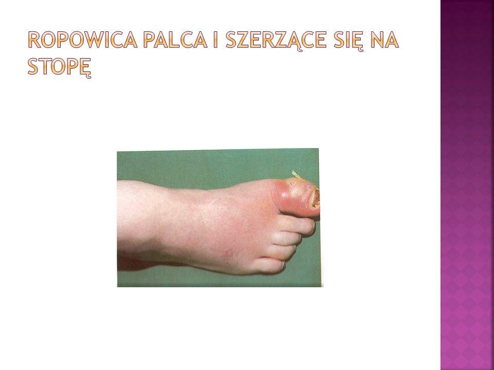 Ropowica palca I szerzące się na stopę