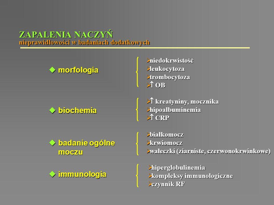 ZAPALENIA NACZYŃ morfologia biochemia badanie ogólne moczu immunologia