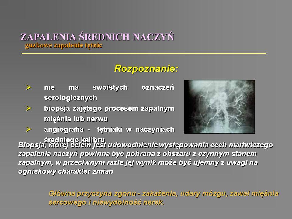 guzkowe zapalenie tętnic