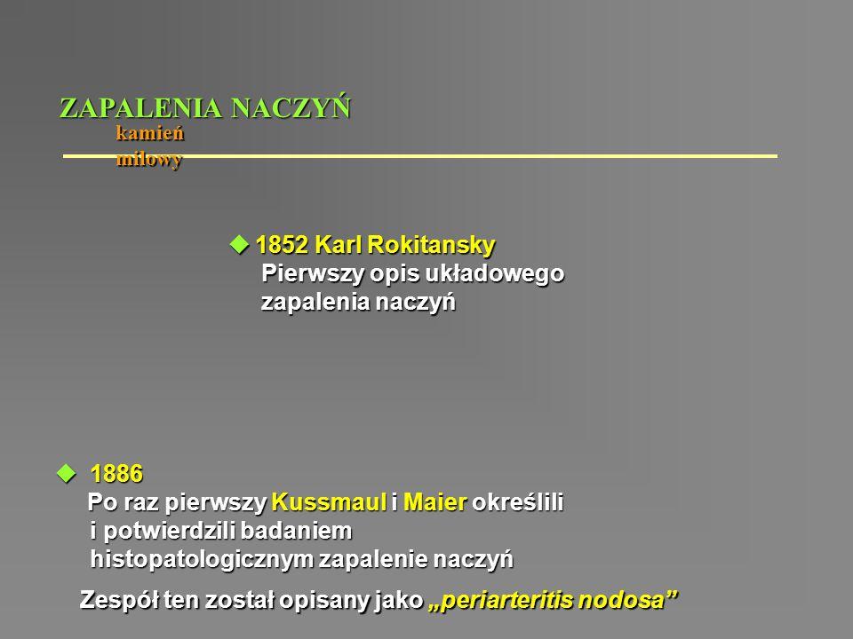 ZAPALENIA NACZYŃ 1852 Karl Rokitansky Pierwszy opis układowego