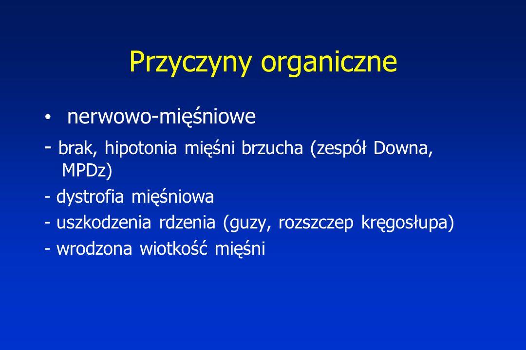 Przyczyny organiczne nerwowo-mięśniowe