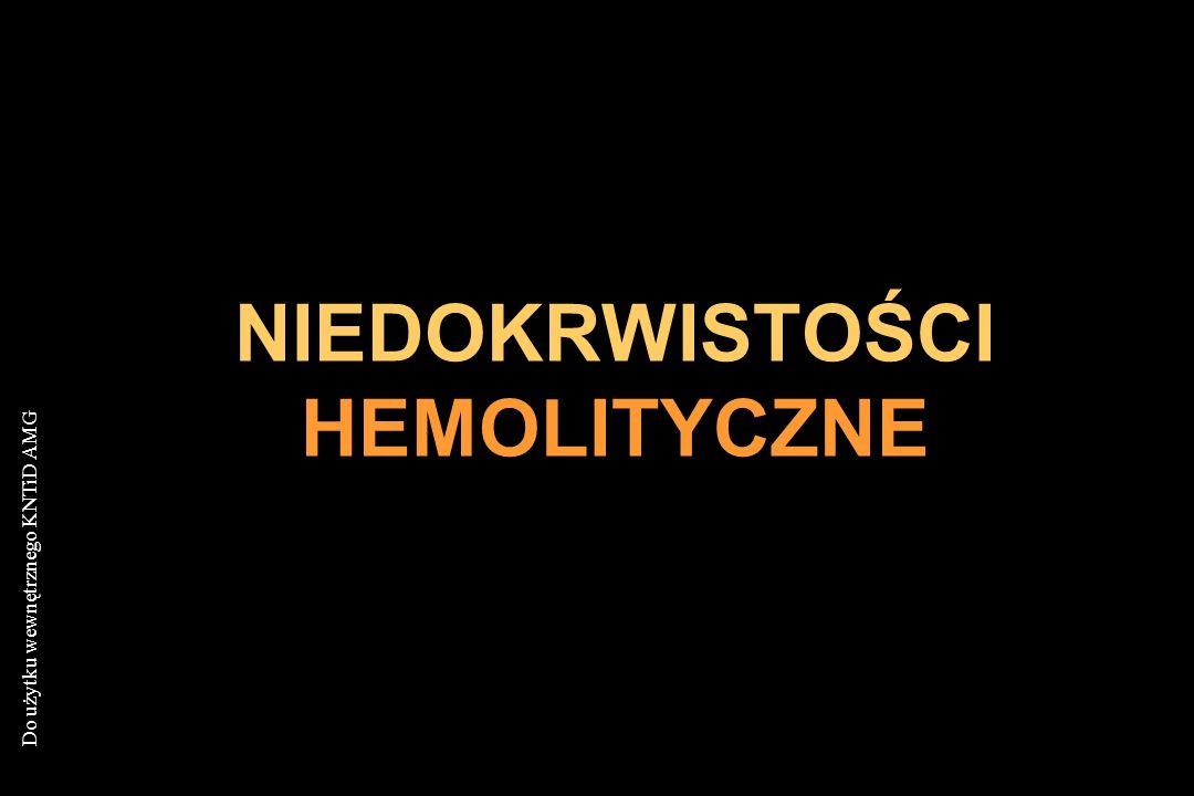 NIEDOKRWISTOŚCI HEMOLITYCZNE