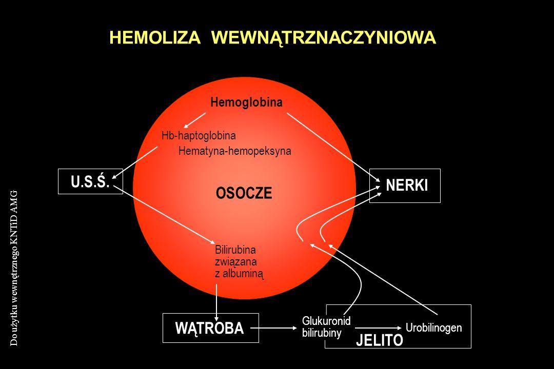 HEMOLIZA WEWNĄTRZNACZYNIOWA