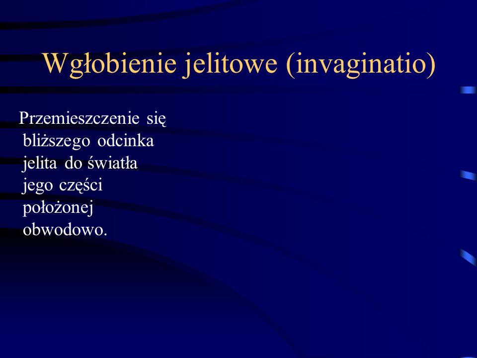 Wgłobienie jelitowe (invaginatio)