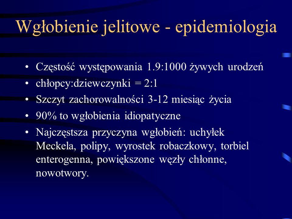 Wgłobienie jelitowe - epidemiologia