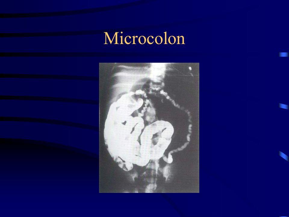 Microcolon