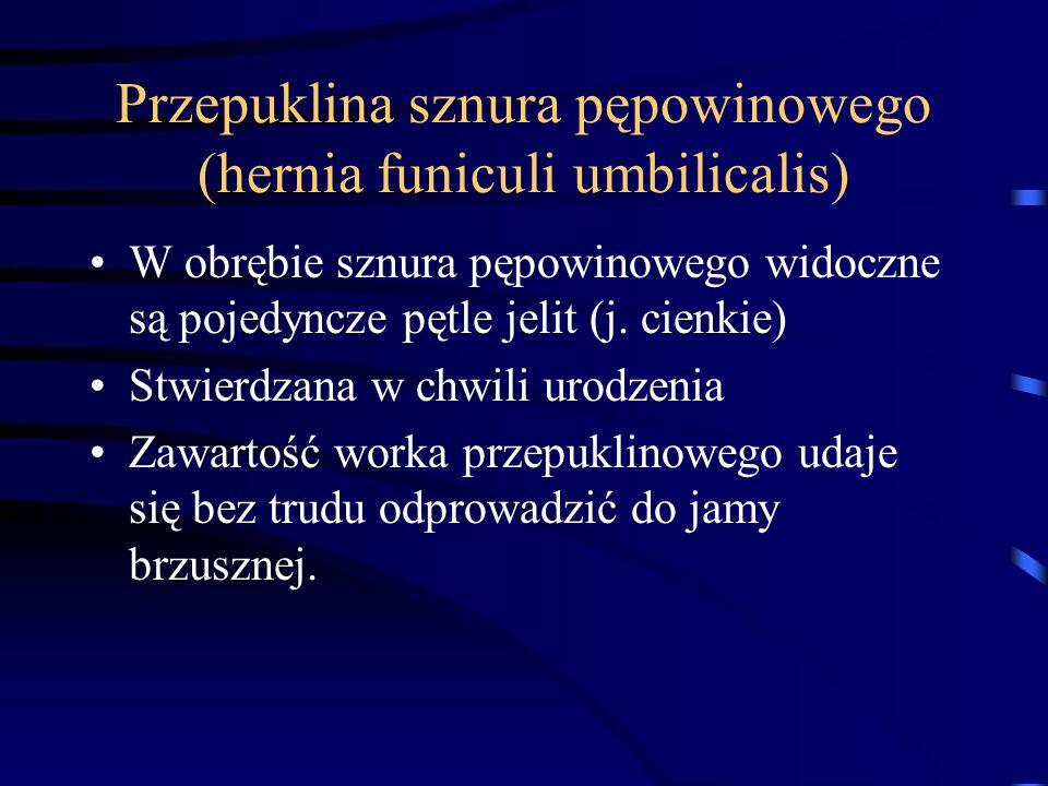 Przepuklina sznura pępowinowego (hernia funiculi umbilicalis)
