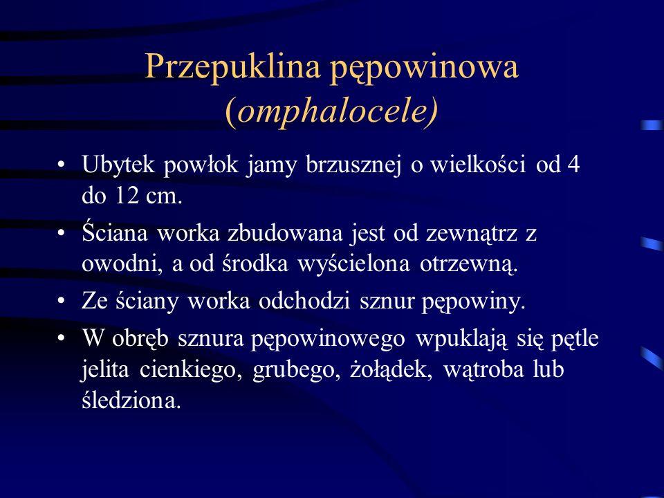 Przepuklina pępowinowa (omphalocele)