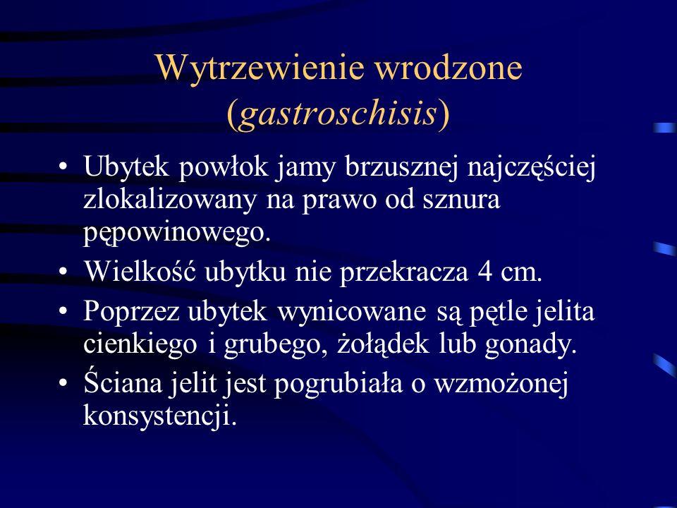 Wytrzewienie wrodzone (gastroschisis)