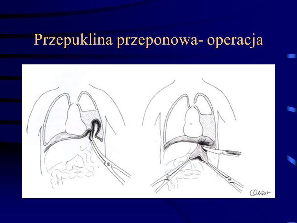 Przepuklina przeponowa- operacja