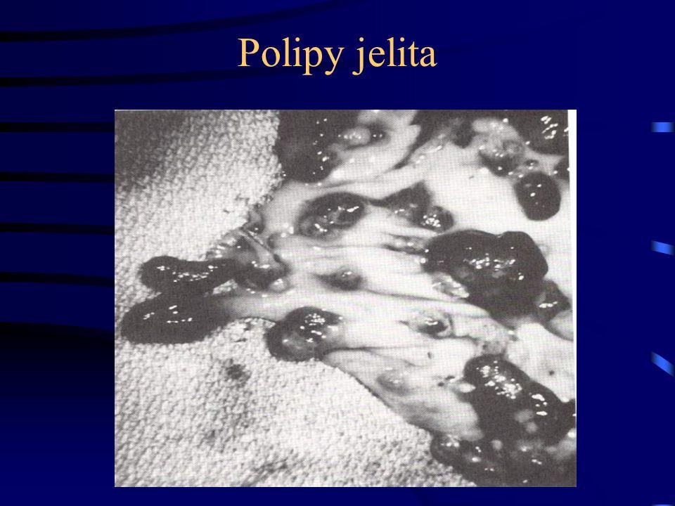 Polipy jelita