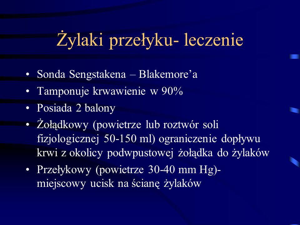 Żylaki przełyku- leczenie