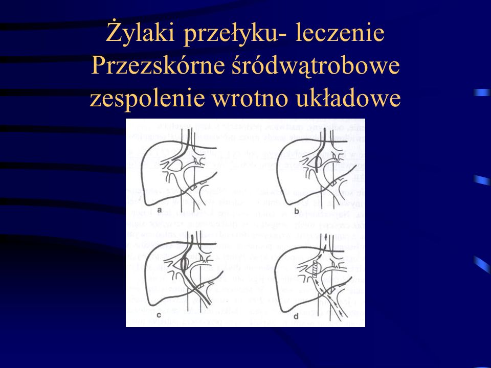 Żylaki przełyku- leczenie Przezskórne śródwątrobowe zespolenie wrotno układowe