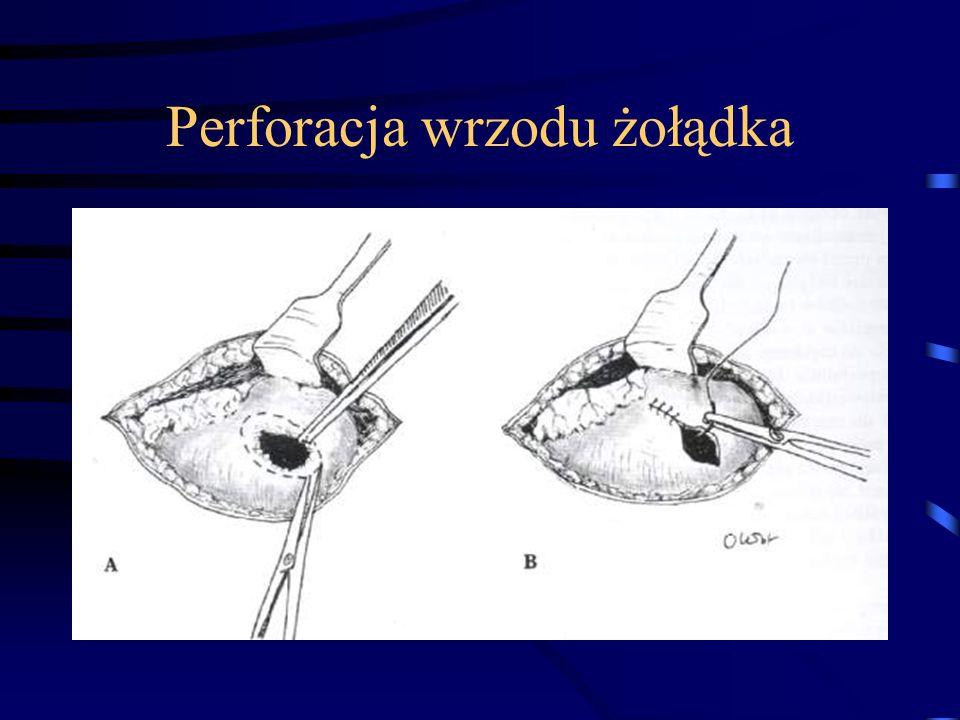 Perforacja wrzodu żołądka