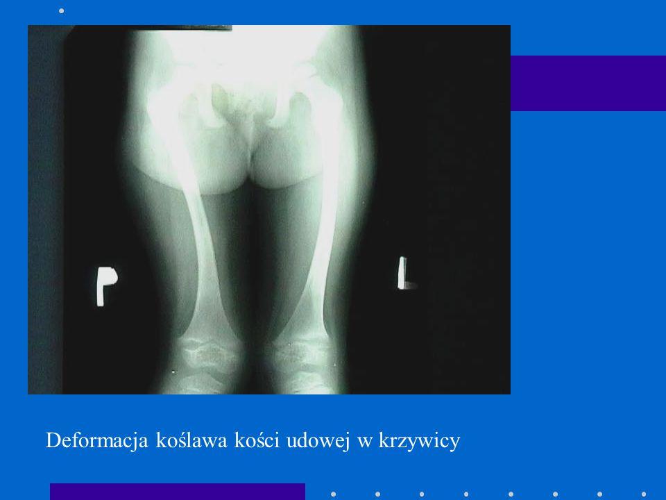 Deformacja koślawa kości udowej w krzywicy