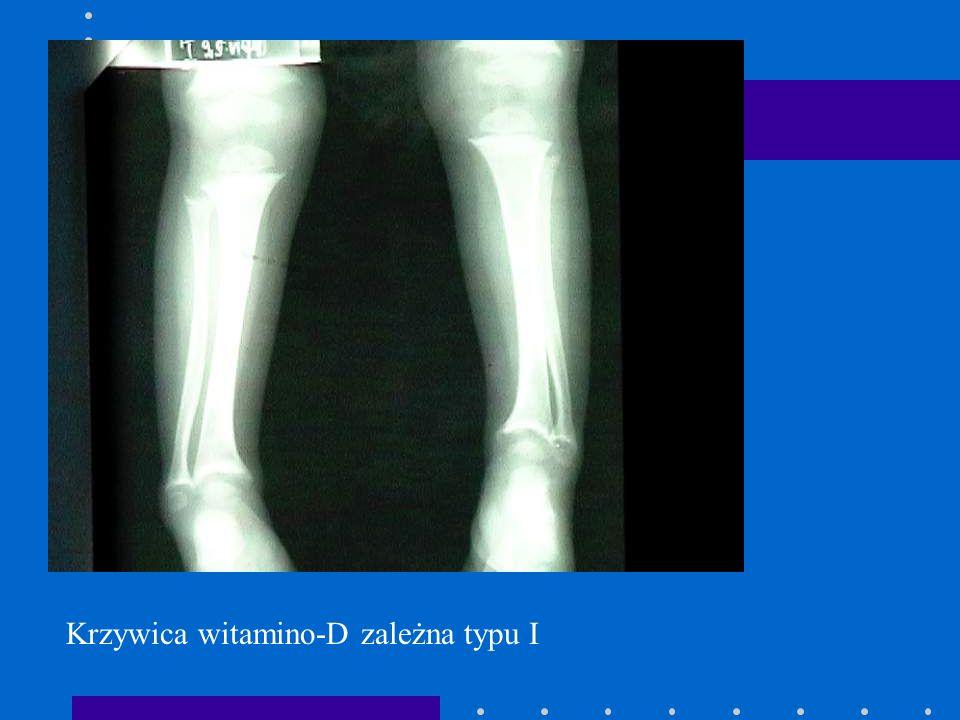 Krzywica witamino-D zależna typu I
