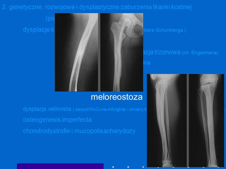2. genetyczne, rozwojowe i dysplastyczne zaburzenia tkanki kostnej