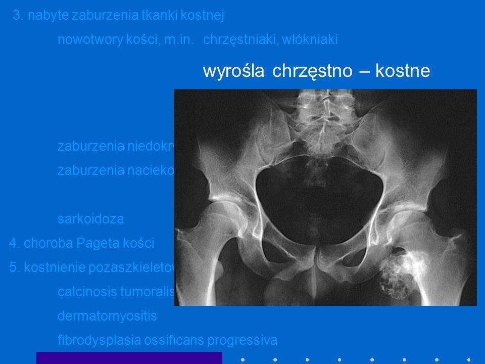 3. nabyte zaburzenia tkanki kostnej