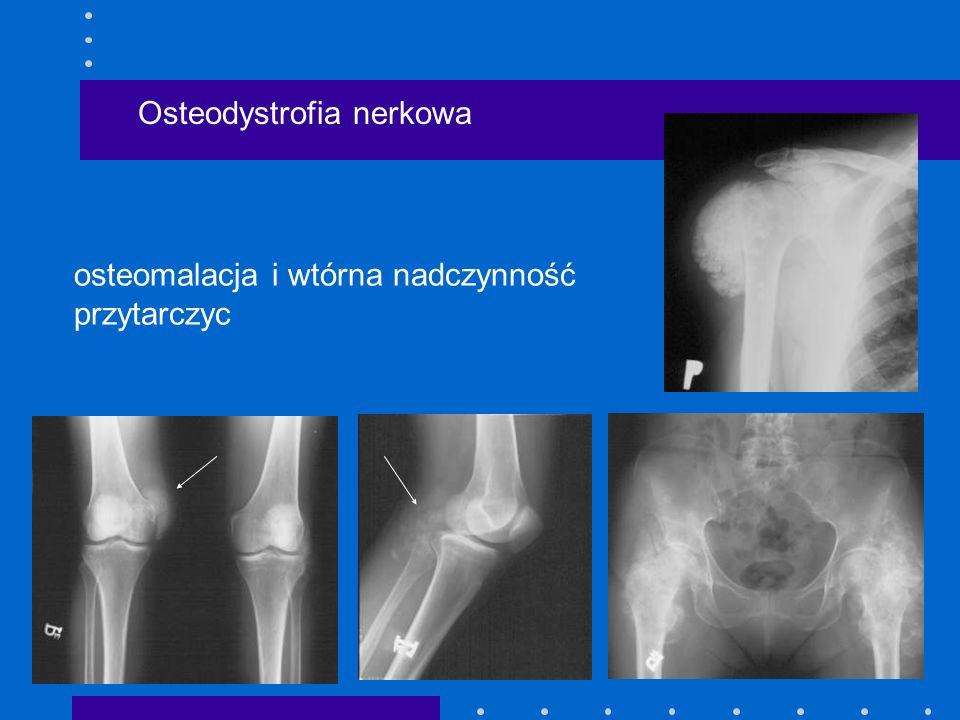 Osteodystrofia nerkowa