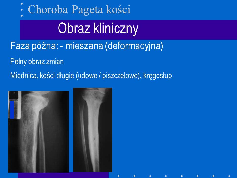 Obraz kliniczny Choroba Pageta kości