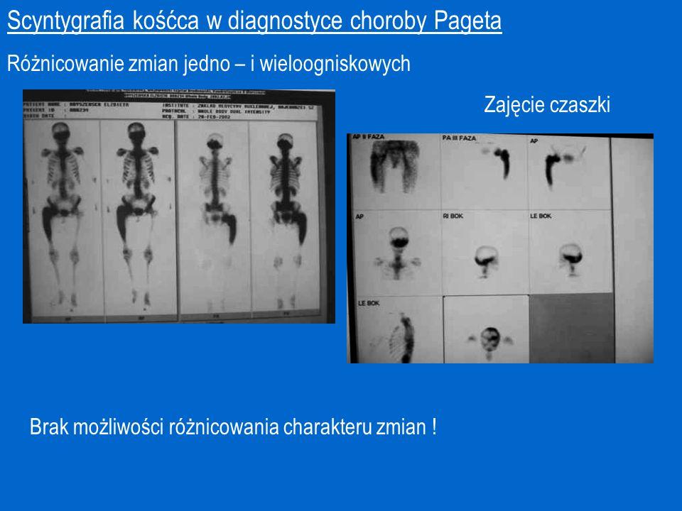 Scyntygrafia kośćca w diagnostyce choroby Pageta