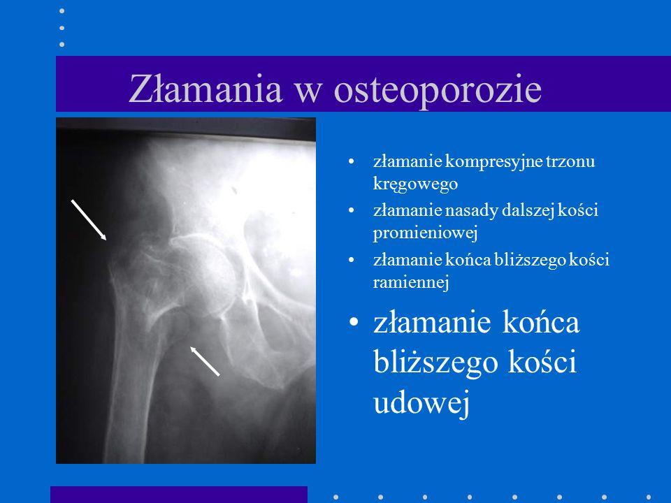 Złamania w osteoporozie