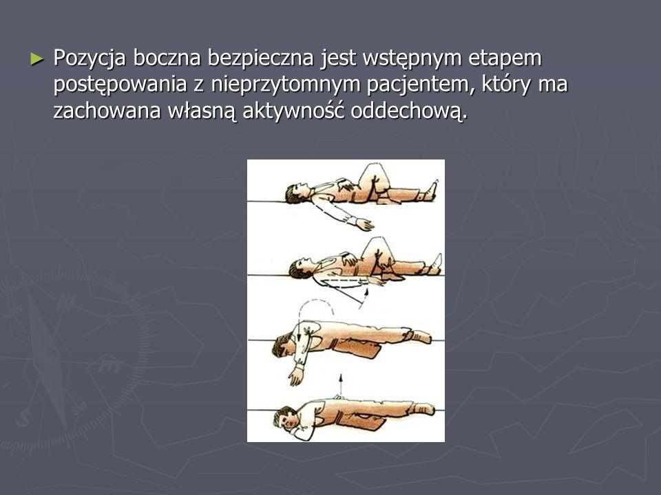 Pozycja boczna bezpieczna jest wstępnym etapem postępowania z nieprzytomnym pacjentem, który ma zachowana własną aktywność oddechową.