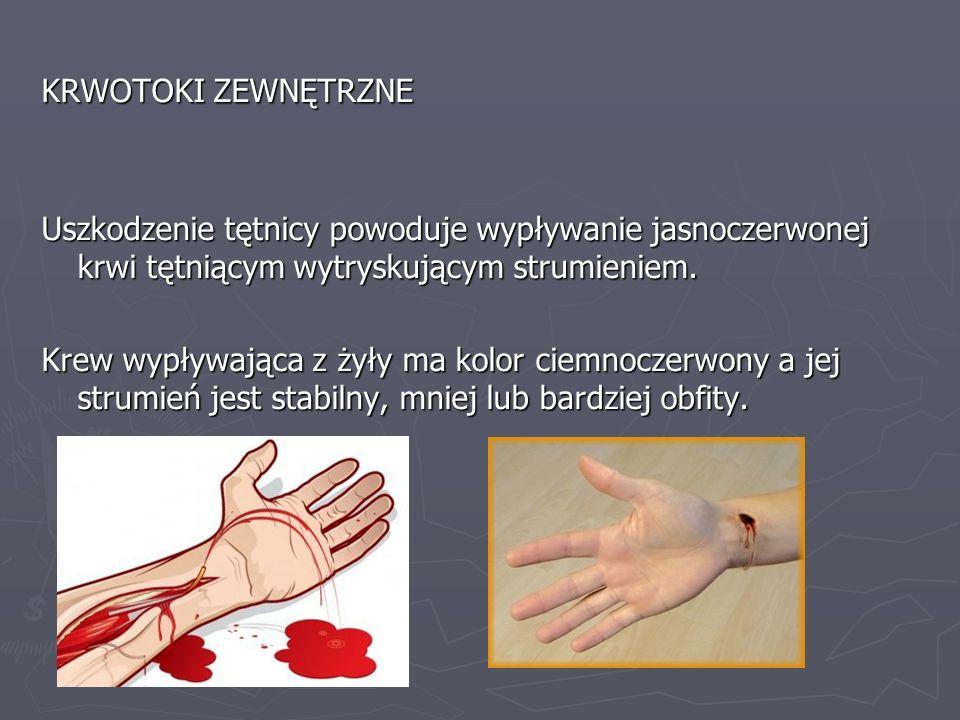 KRWOTOKI ZEWNĘTRZNE Uszkodzenie tętnicy powoduje wypływanie jasnoczerwonej krwi tętniącym wytryskującym strumieniem.