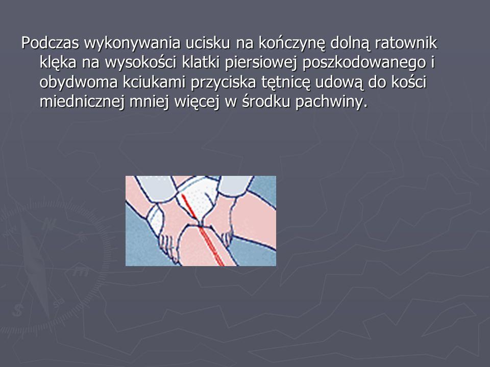 Podczas wykonywania ucisku na kończynę dolną ratownik klęka na wysokości klatki piersiowej poszkodowanego i obydwoma kciukami przyciska tętnicę udową do kości miednicznej mniej więcej w środku pachwiny.