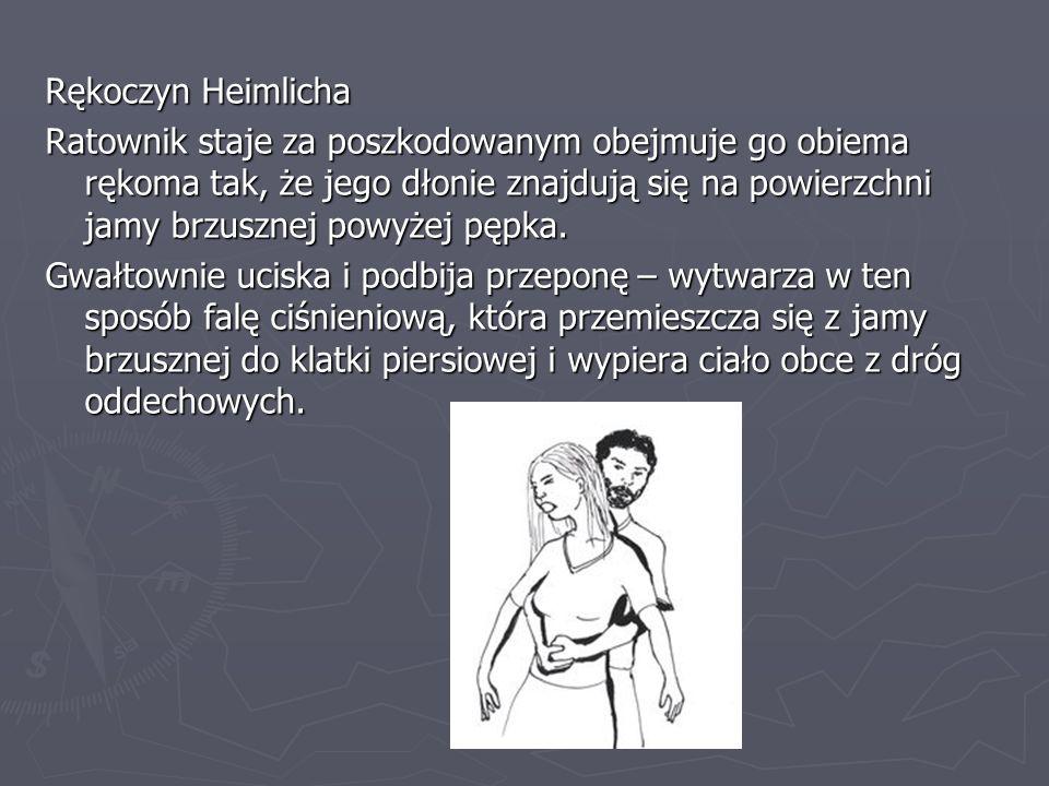Rękoczyn Heimlicha