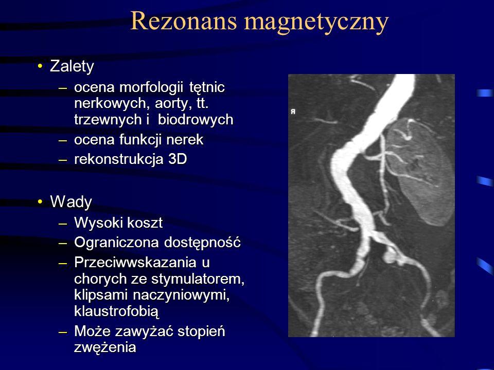 Rezonans magnetyczny Zalety Wady