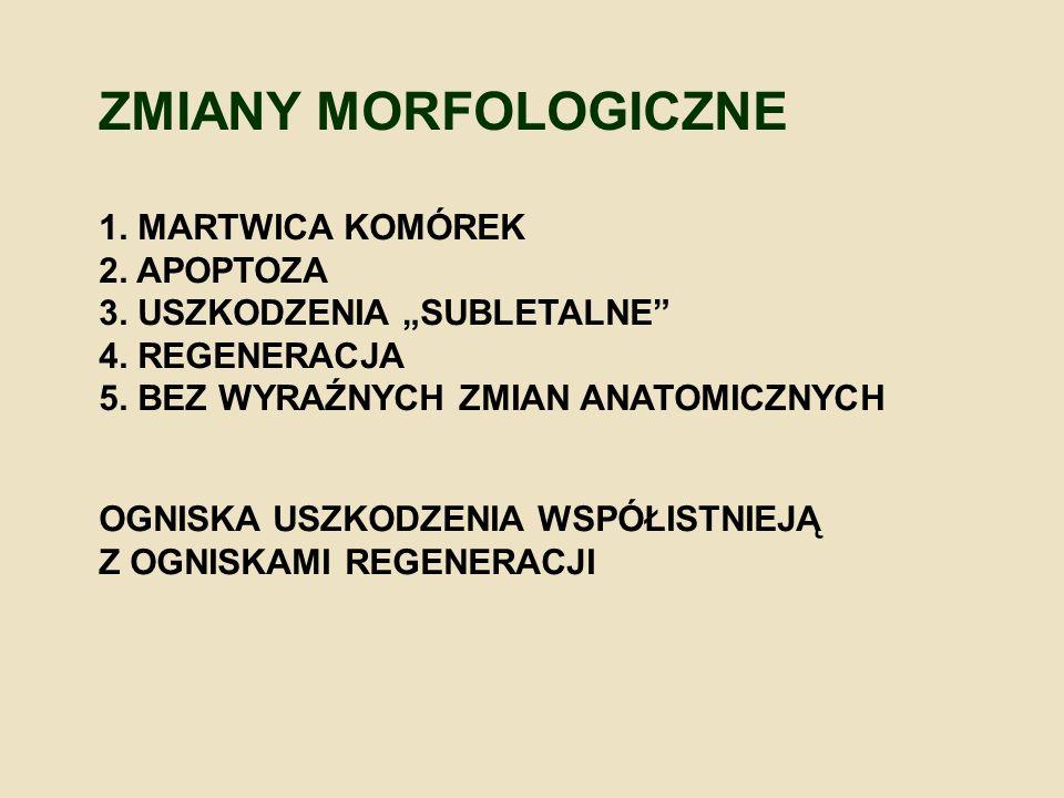 ZMIANY MORFOLOGICZNE 1. MARTWICA KOMÓREK 2. APOPTOZA