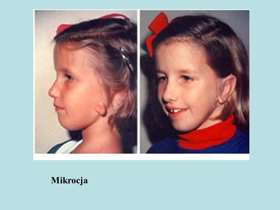 Mikrocja