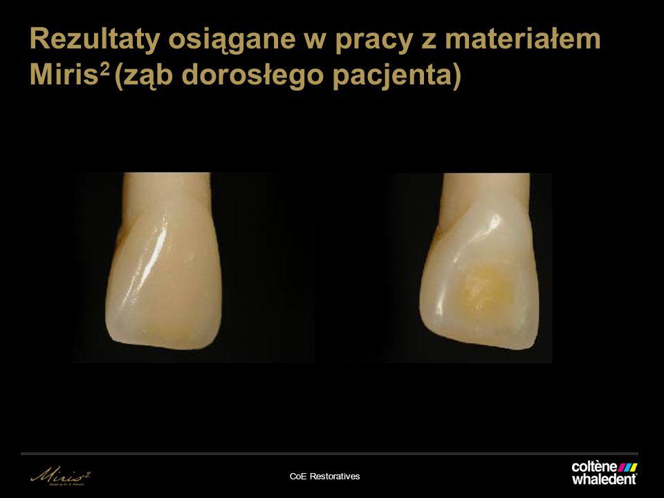 Rezultaty osiągane w pracy z materiałem Miris2 (ząb dorosłego pacjenta)
