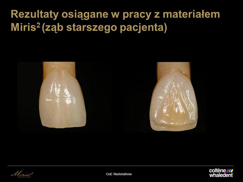 Rezultaty osiągane w pracy z materiałem Miris2 (ząb starszego pacjenta)